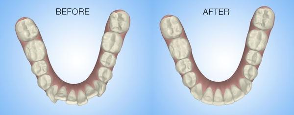 Treatment Simulator Mandibular Occlusal